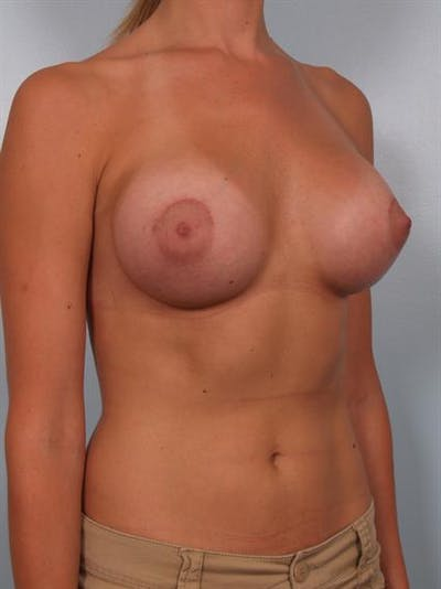 Breast Augmentation Gallery - Patient 1310378 - Image 6