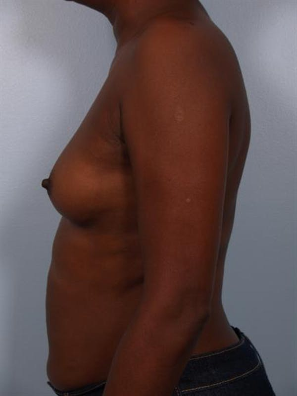 Breast Augmentation Gallery - Patient 1310379 - Image 1