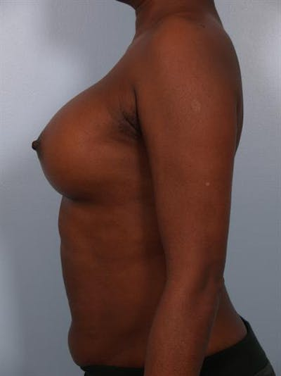 Breast Augmentation Gallery - Patient 1310379 - Image 2