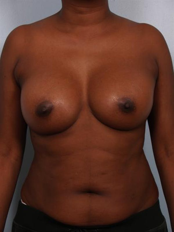 Breast Augmentation Gallery - Patient 1310379 - Image 4