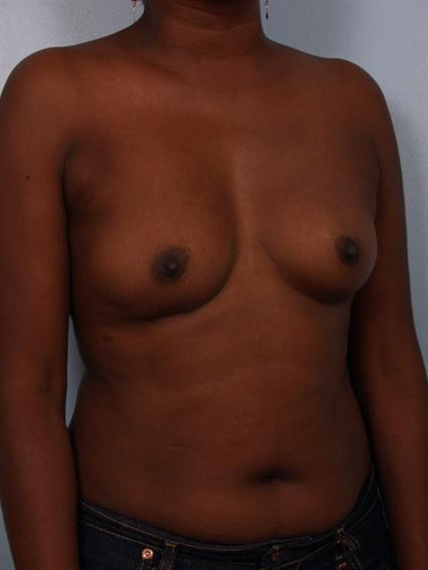 Breast Augmentation Gallery - Patient 1310379 - Image 5