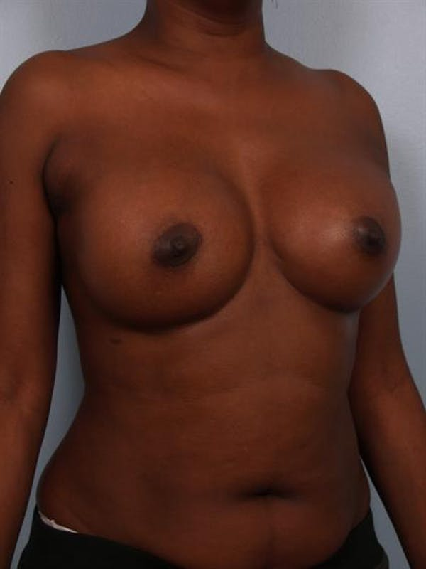 Breast Augmentation Gallery - Patient 1310379 - Image 6