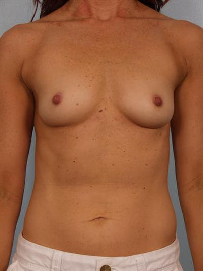 Breast Augmentation Gallery - Patient 1310380 - Image 1