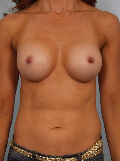 Breast Augmentation Gallery - Patient 1310380 - Image 2