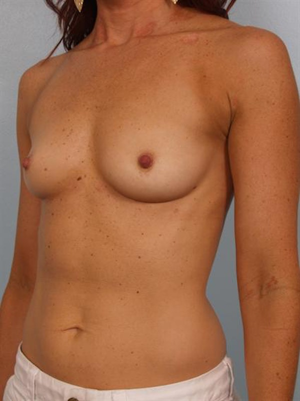 Breast Augmentation Gallery - Patient 1310380 - Image 3