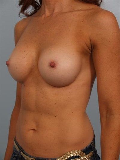 Breast Augmentation Gallery - Patient 1310380 - Image 4