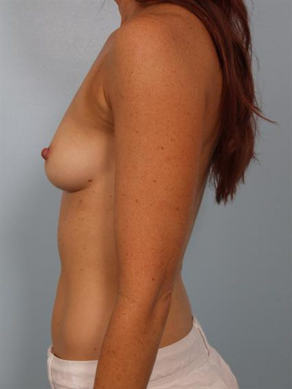 Breast Augmentation Gallery - Patient 1310380 - Image 5
