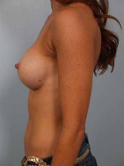Breast Augmentation Gallery - Patient 1310380 - Image 6