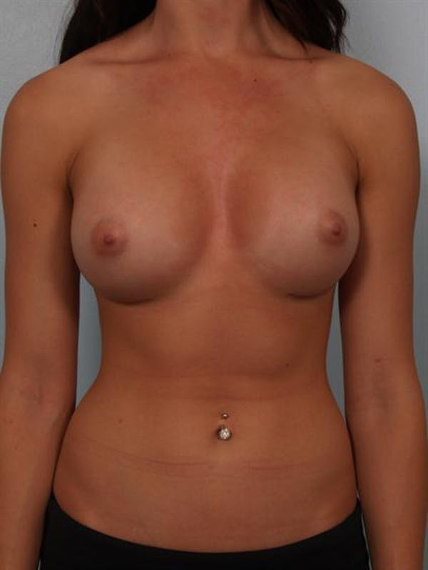 Breast Augmentation Gallery - Patient 1310381 - Image 2