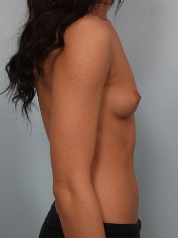 Breast Augmentation Gallery - Patient 1310381 - Image 3