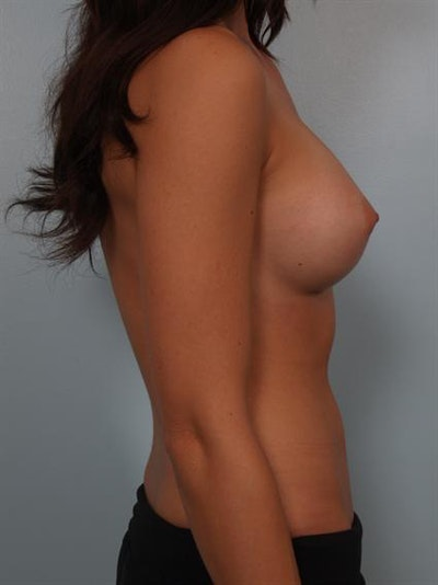 Breast Augmentation Gallery - Patient 1310381 - Image 4
