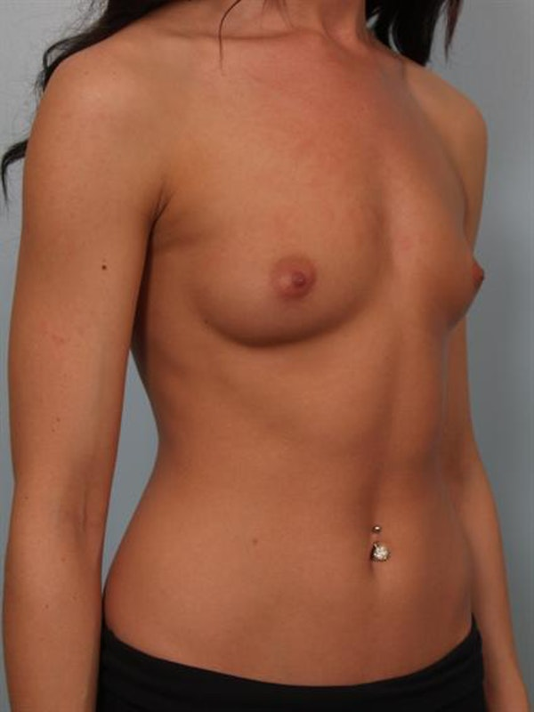 Breast Augmentation Gallery - Patient 1310381 - Image 5