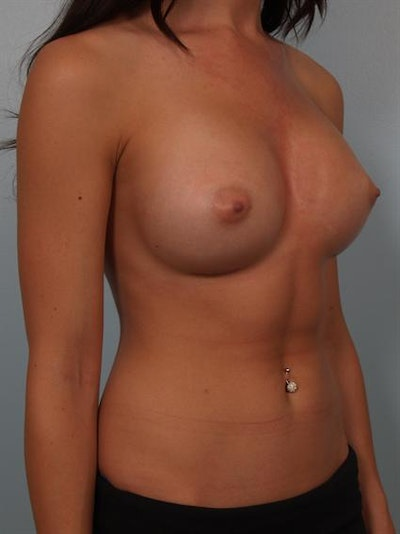 Breast Augmentation Gallery - Patient 1310381 - Image 6
