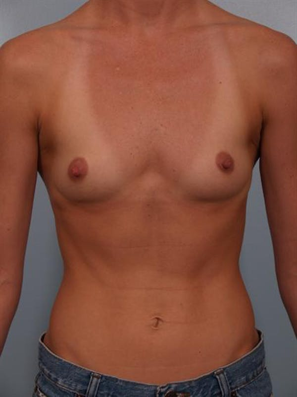 Breast Augmentation Gallery - Patient 1310383 - Image 1