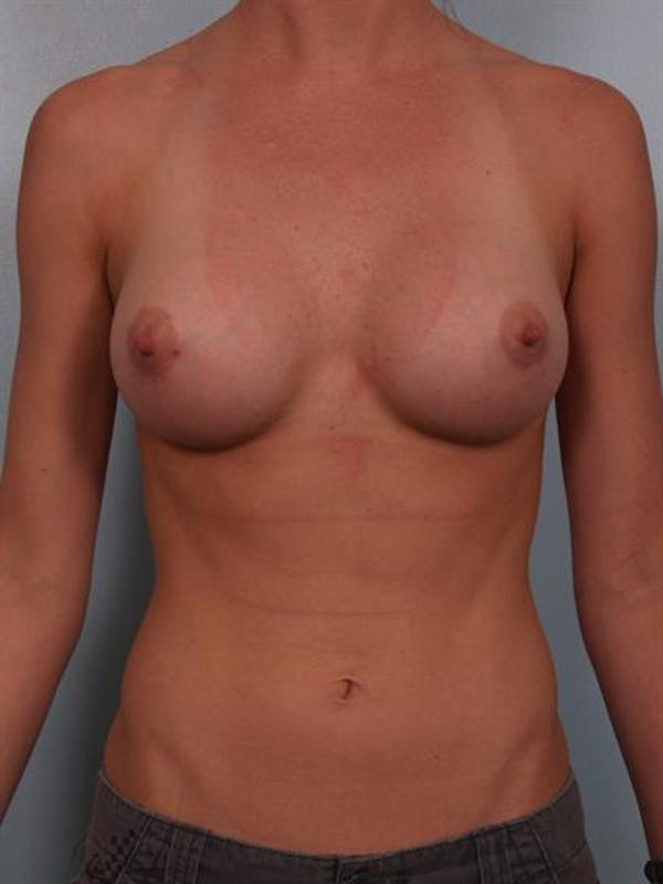 Breast Augmentation Gallery - Patient 1310383 - Image 2