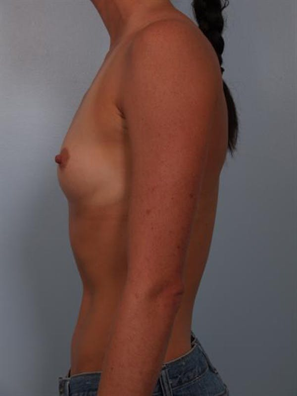 Breast Augmentation Gallery - Patient 1310383 - Image 3