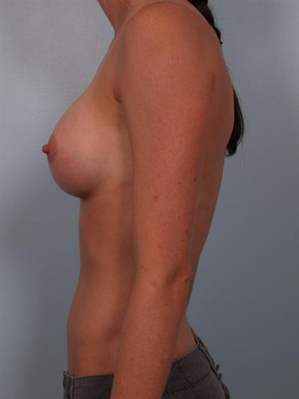 Breast Augmentation Gallery - Patient 1310383 - Image 4
