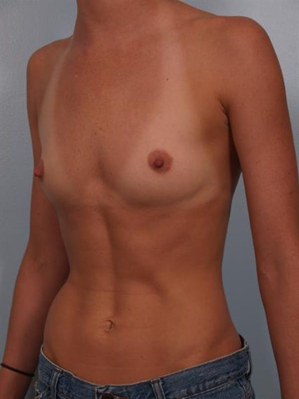 Breast Augmentation Gallery - Patient 1310383 - Image 5
