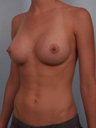 Breast Augmentation Gallery - Patient 1310383 - Image 6