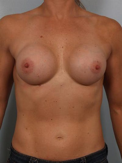Breast Augmentation Gallery - Patient 1310398 - Image 1