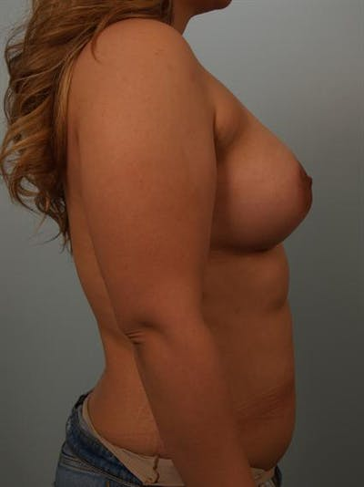 Breast Augmentation Gallery - Patient 1310399 - Image 2