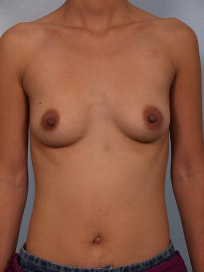 Breast Augmentation Gallery - Patient 1310400 - Image 1