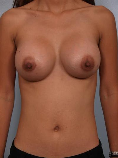 Breast Augmentation Gallery - Patient 1310400 - Image 2