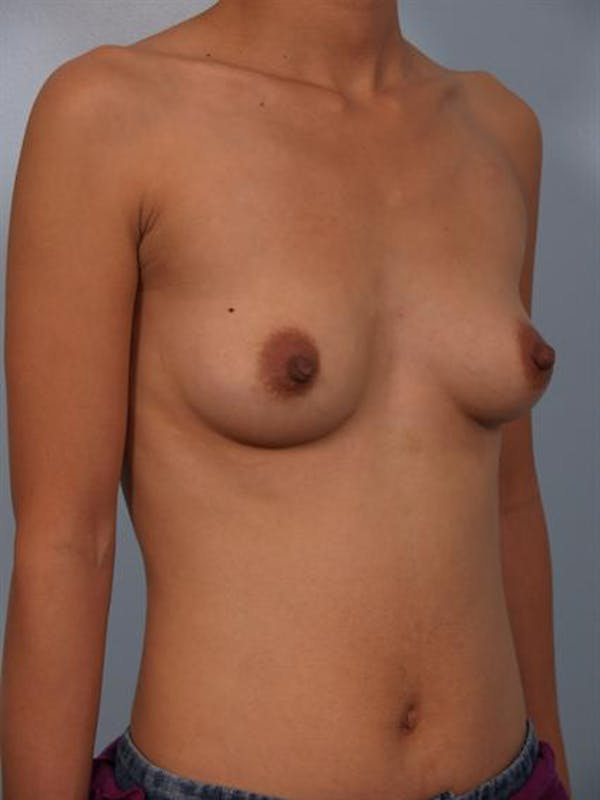 Breast Augmentation Gallery - Patient 1310400 - Image 3