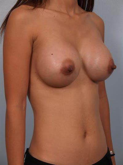 Breast Augmentation Gallery - Patient 1310400 - Image 4