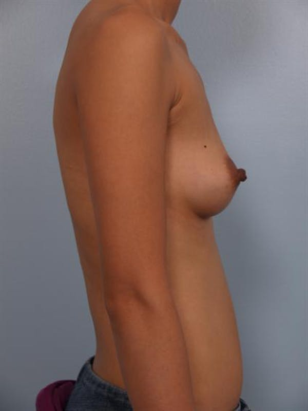 Breast Augmentation Gallery - Patient 1310400 - Image 5