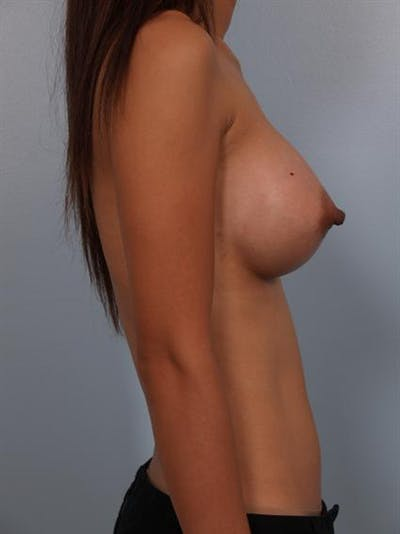 Breast Augmentation Gallery - Patient 1310400 - Image 6