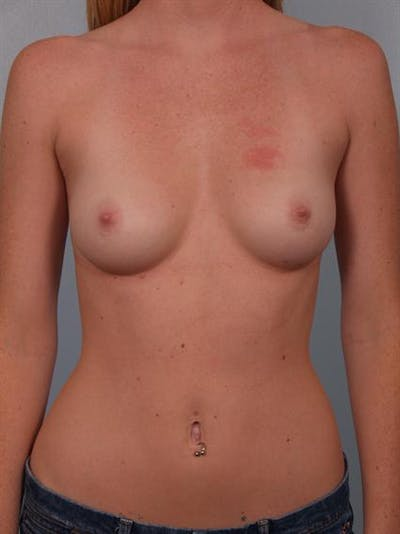 Breast Augmentation Gallery - Patient 1310401 - Image 1