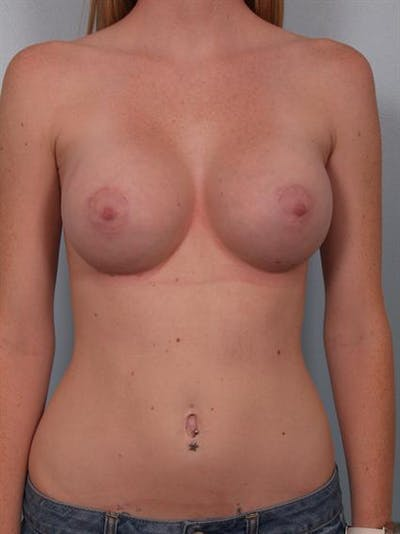 Breast Augmentation Gallery - Patient 1310401 - Image 2