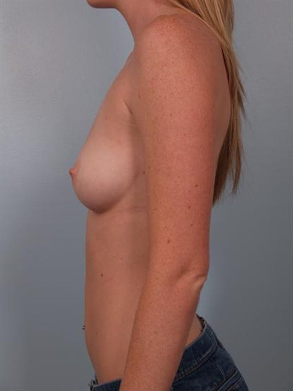 Breast Augmentation Gallery - Patient 1310401 - Image 3