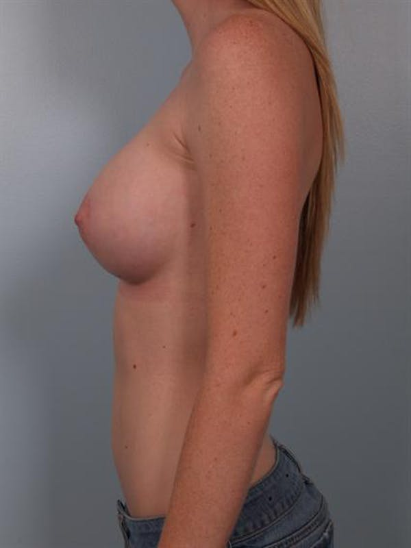 Breast Augmentation Gallery - Patient 1310401 - Image 4