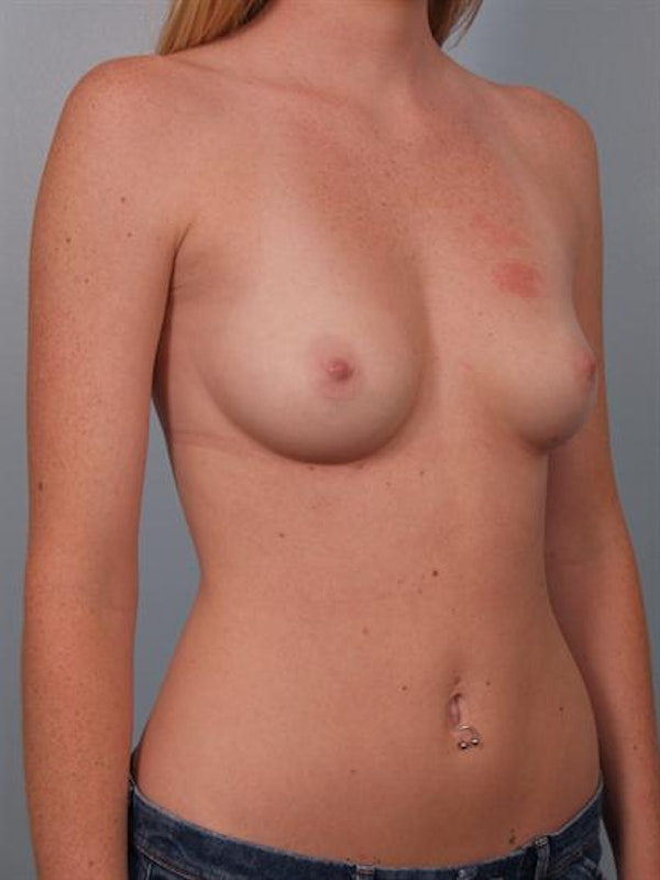 Breast Augmentation Gallery - Patient 1310401 - Image 5
