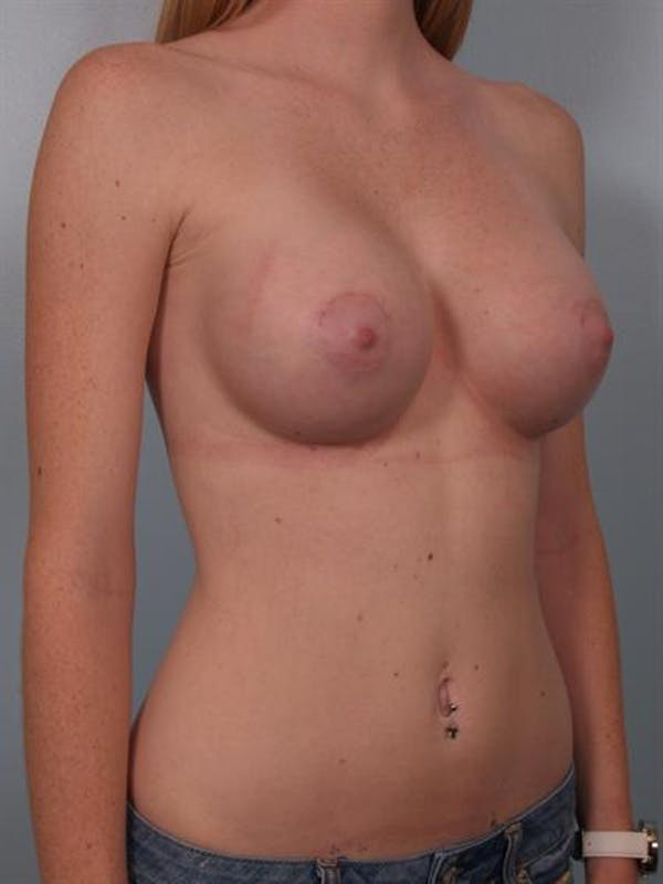 Breast Augmentation Gallery - Patient 1310401 - Image 6