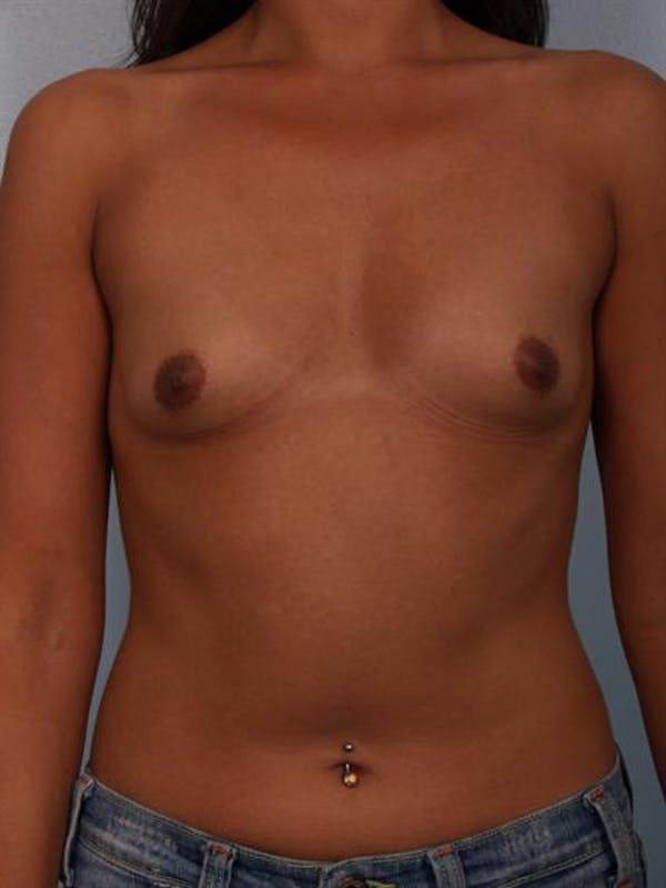 Breast Augmentation Gallery - Patient 1310403 - Image 1