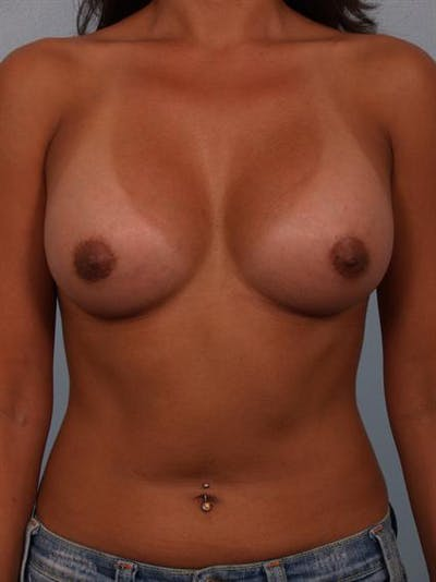 Breast Augmentation Gallery - Patient 1310403 - Image 2