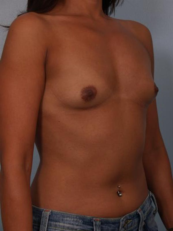 Breast Augmentation Gallery - Patient 1310403 - Image 3