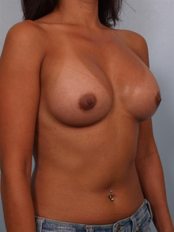 Breast Augmentation Gallery - Patient 1310403 - Image 4