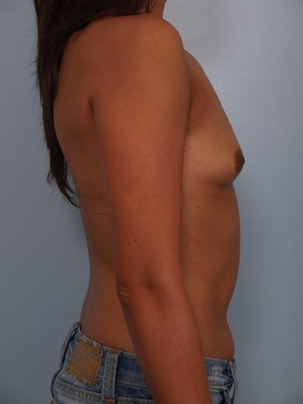 Breast Augmentation Gallery - Patient 1310403 - Image 5