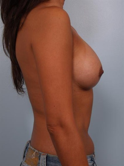 Breast Augmentation Gallery - Patient 1310403 - Image 6