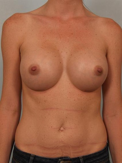 Breast Augmentation Gallery - Patient 1310405 - Image 2