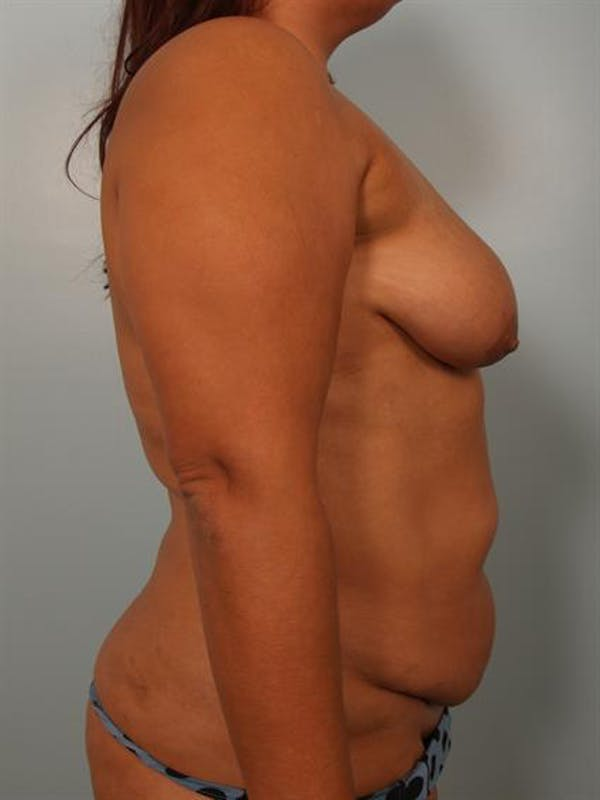 Breast Lift Gallery - Patient 1310404 - Image 5