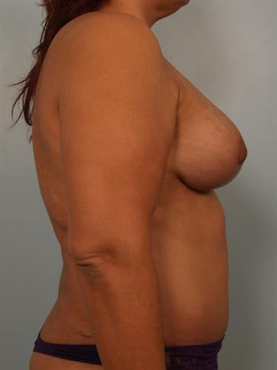 Breast Lift Gallery - Patient 1310404 - Image 6