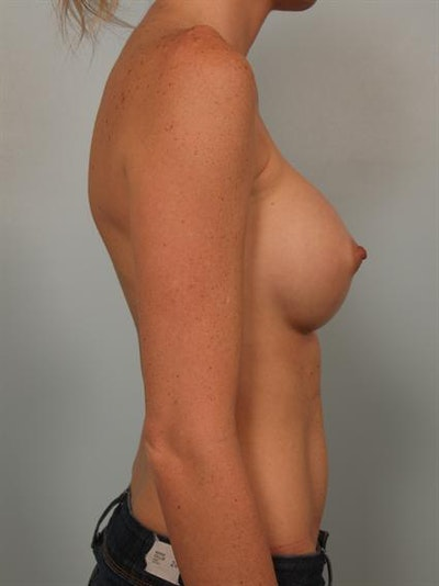 Breast Augmentation Gallery - Patient 1310405 - Image 6