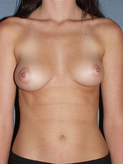 Breast Augmentation Gallery - Patient 1310411 - Image 1