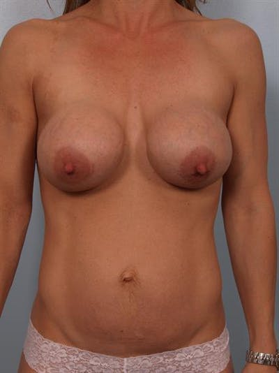 Breast Lift Gallery - Patient 1310413 - Image 1