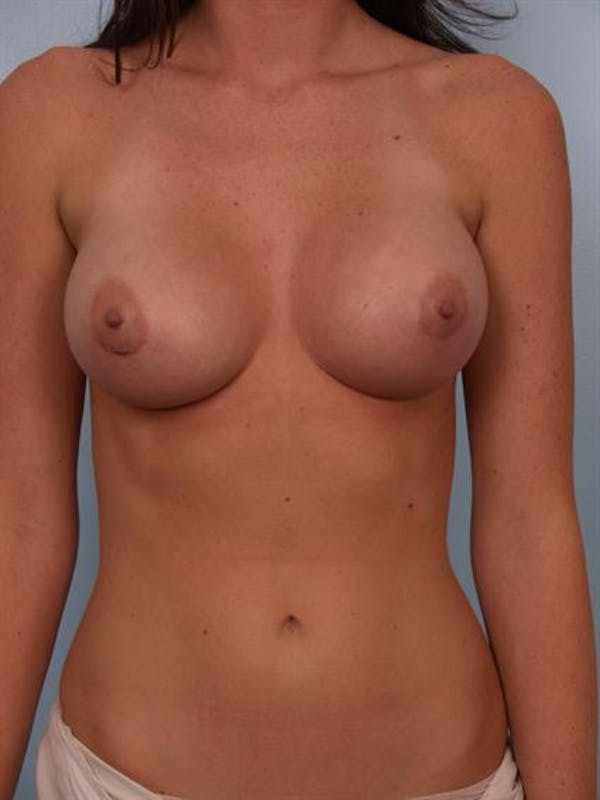Breast Augmentation Gallery - Patient 1310411 - Image 2